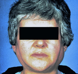 Elusive Sjogren S Manageable If Diagnosed Acp Internist